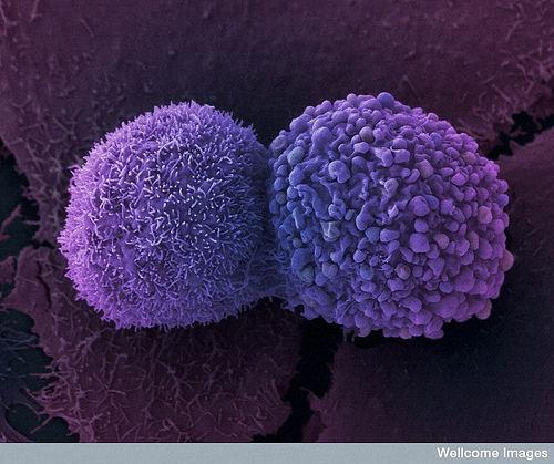 False color scanning electron micrograph showing two lung cancer cells. Anne Weston, Wellcome Images