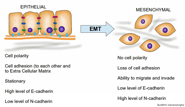 Epithelial to mesenchymal transition