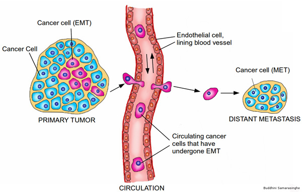 EMT and metastasis